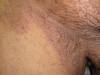 Онихомикоз. Клинические фото #2030