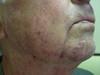 Гранулема Майокки на лице и венозные озерца губ и век. №2192