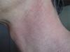 Межфолликулярный эритромеланоз шеи и гепатит-С. №2268