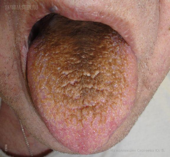 Черный волосатый язык и пруриго