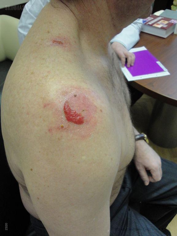 Диффузный воспалительный рак кожи