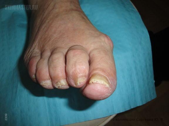 Астеатозная (сухая) дерматофития