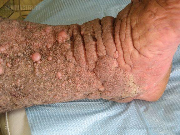 Псевдокарциноидный папилломатоз Готтрона