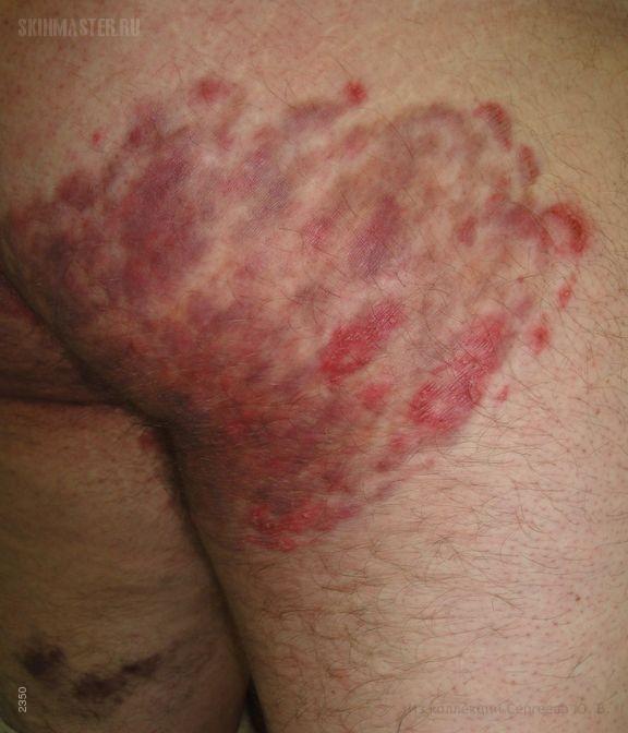 Стероидная паховая дерматофития
