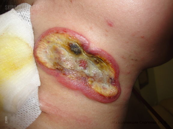 Т-клеточная лимфома кожи: «обезглавленный грибовидный микоз».