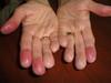 Хронический контактный дерматит. №2392