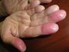 Хронический контактный дерматит. №2393