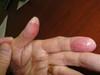 Хронический контактный дерматит. №2396