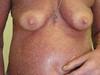Сидром Сезари: Т-клеточная лимфома кожи. №2468
