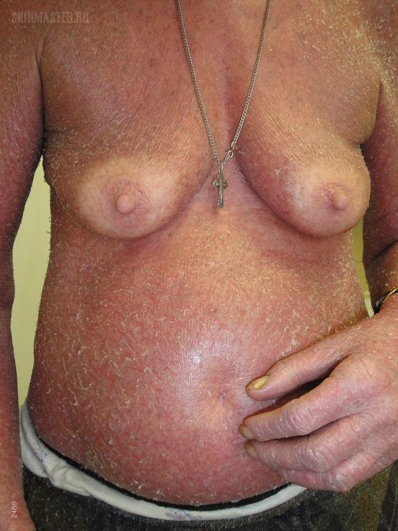 Сидром Сезари: Т-клеточная лимфома кожи