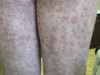 Криоглобулинемическая пурпура. №2484