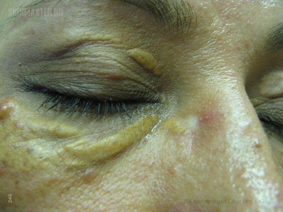 фото ксантоматоз кожи