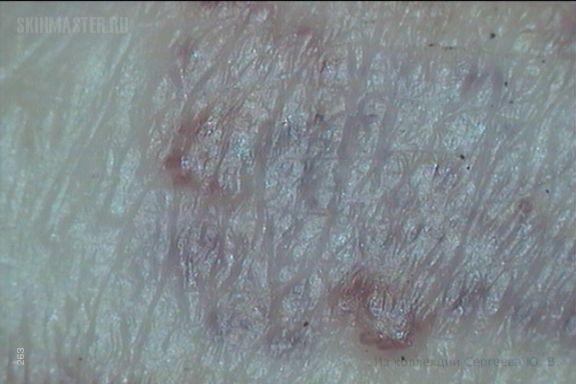 Язвенно-некротический ангиит (васкулит)