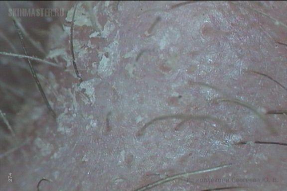 Псориаз спровоцированный лекарственной токсидермией