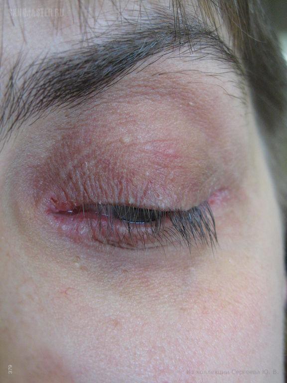 Атопический дерматит и блефароконъюнктивит