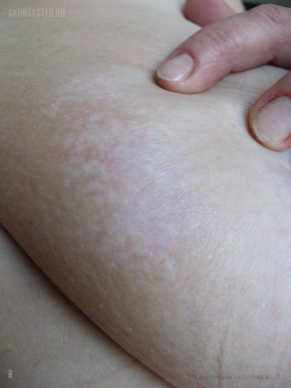 Склероатрофический лихен