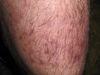 Гранулема Майокки. Клинические фото #450
