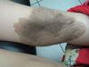 Невус врожденный меланоцитарный. Клинические фото #474