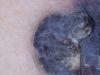 Меланома. Клинические фото #498
