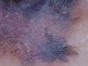 Меланома. Клинические фото #499