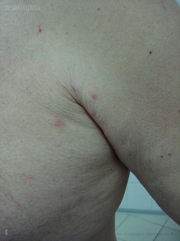 Постскабиозная лимфоплазия