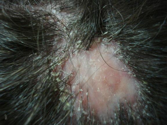Псевдопелада Брока. Симптом «обгорелой спички»