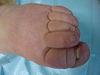 Рожа, лимфостаз и вросший ноготь на фоне онихомикоза. №532