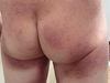 Микоз грибовидный. Клинические фото #555