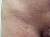 Микоз грибовидный. Клинические фото #558