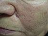 Базалиома. Клинические фото #573
