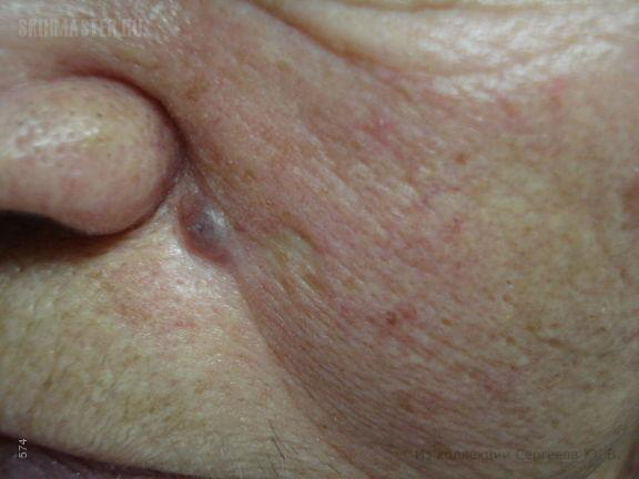 Рецидивирующая базалиома носогубной складки