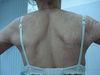 Дерматит атопический. Клинические фото #578