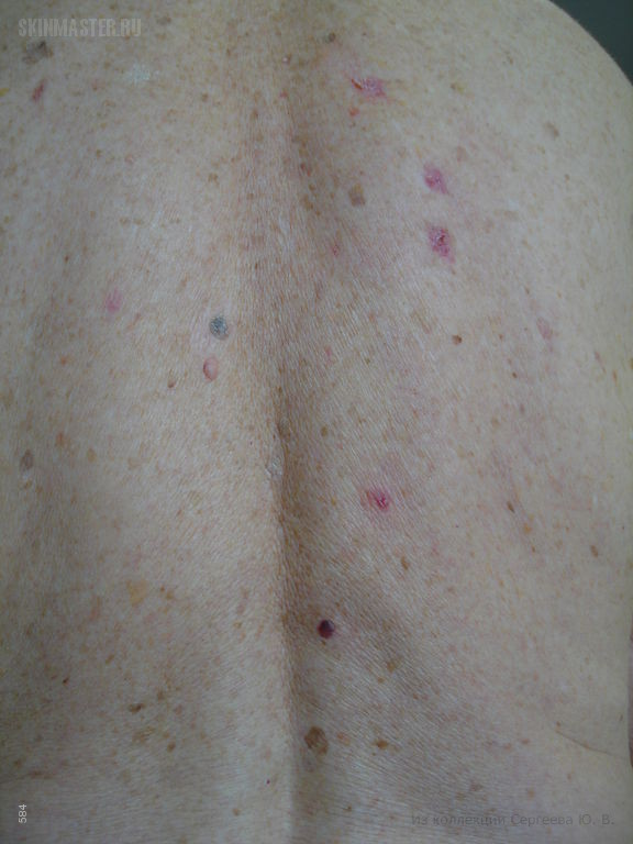 Первично-множественные базалиомы спины, кистозная пигментированная базалиома