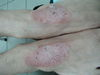 Псориаз. Клинические фото #627