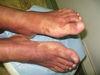 Шамберга болезнь. Клинические фото #649