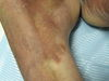 Шамберга болезнь. Клинические фото #653
