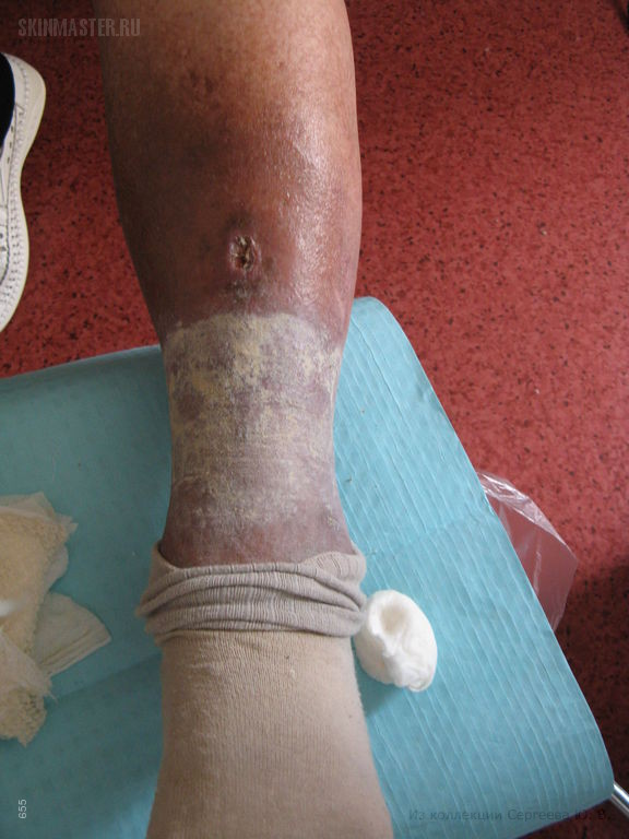 Трофическая язва голени, посттромбофлебитический синдром и экзема