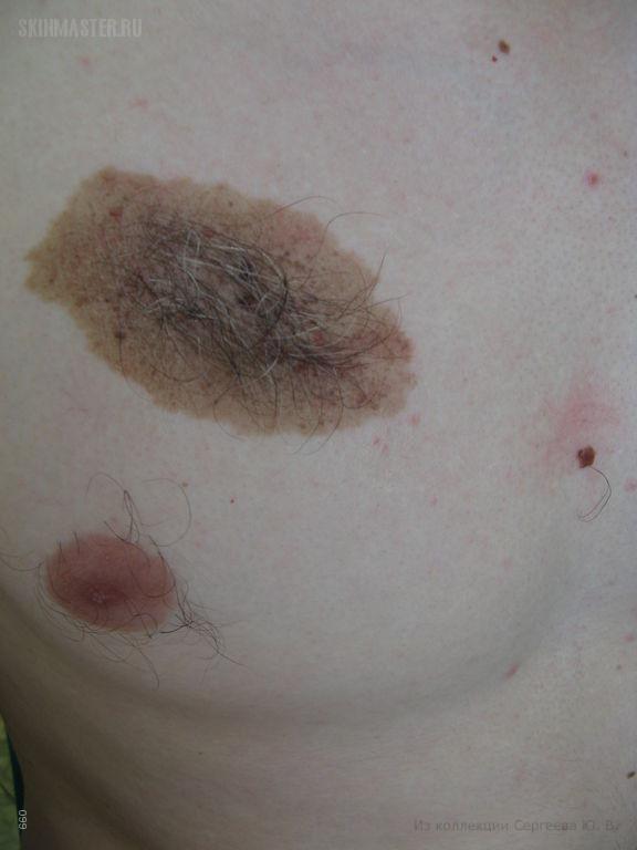 Врожденный меланоцитарный невус