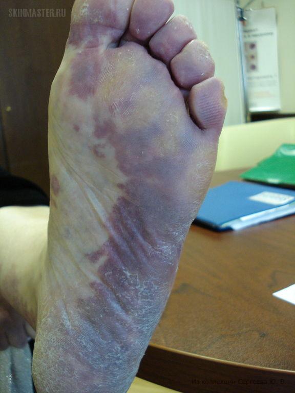 Синдром Клиппеля-Тренонея-Вебера