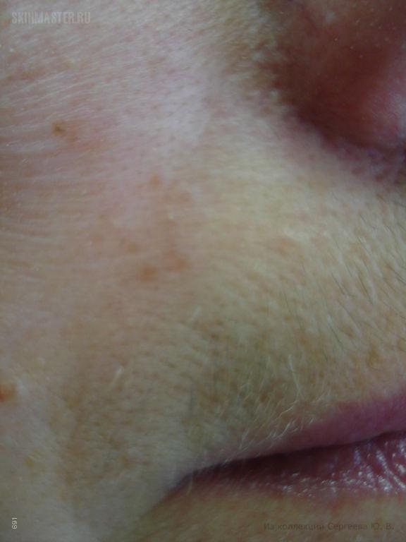 Периоральный (периорбитальный) дерматит