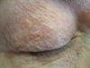Дерматит периоральный. Клинические фото #692