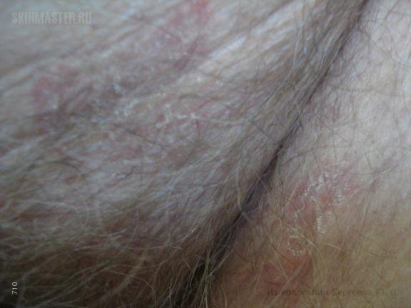 Дерматофития гладкой кожи, лобка, паховых складок и стоп