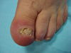 Паронихия и дерматофития ногтей. №728