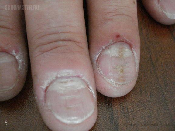 Настойка чистотела спиртовая от грибка ногтя