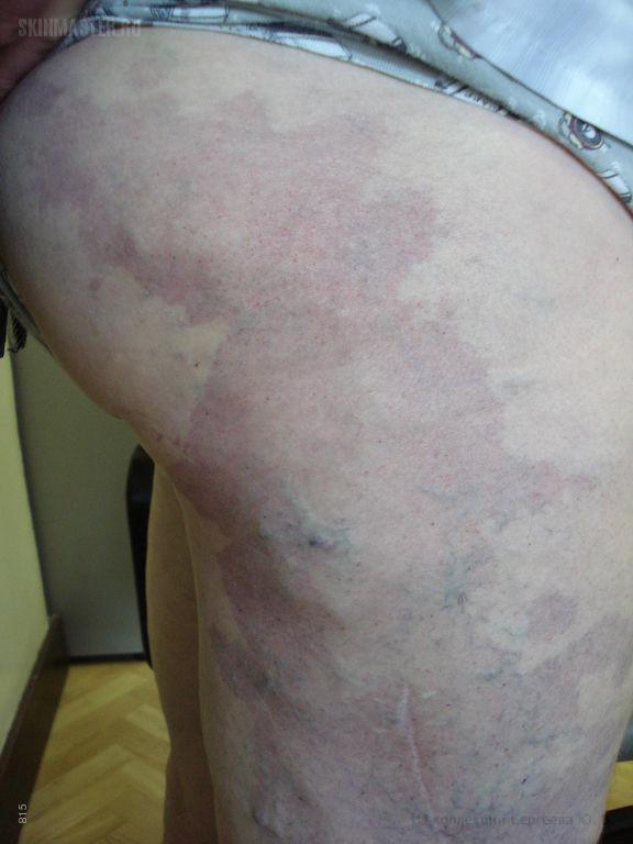 Синдром Клиппеля-Тренонея и болезнь Шамберга