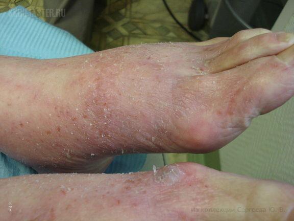 Атопический дерматит и отек голеней