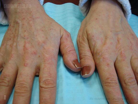 Лекарственная аллергия (медикаментозная токсикодермия)