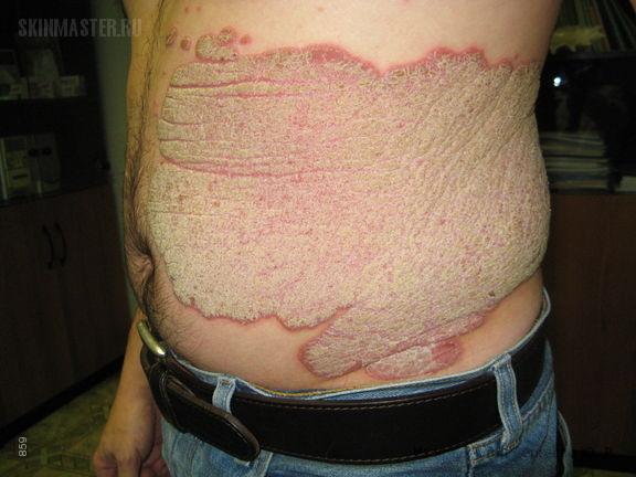 Хронический бляшечный псориаз с поражением ладоней