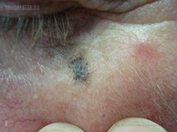 Преканцерозный ограниченный меланоз Дюбрея