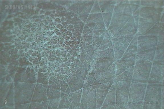 Штукатурный кератоз (stucco keratosis) и псориаз